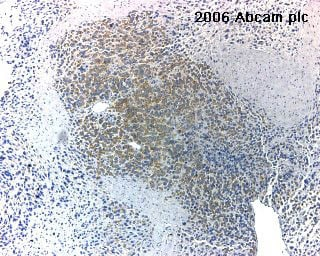 Immunohistochemistry (Formalin/PFA-fixed paraffin-embedded sections) - Anti-Carbonic Anhydrase 9/CA9 antibody (ab15086)