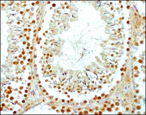 Immunohistochemistry (Formalin/PFA-fixed paraffin-embedded sections) - Anti-SCP3 antibody (ab15093)