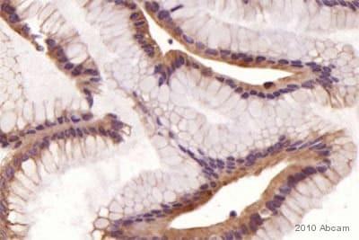 Immunohistochemistry (Frozen sections) - Anti-E Cadherin antibody - Intercellular Junction Marker (ab15148)