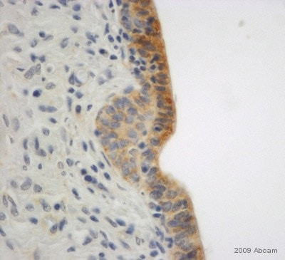 Immunohistochemistry (Formalin/PFA-fixed paraffin-embedded sections) - Anti-E Cadherin antibody - Intercellular Junction Marker (ab15148)