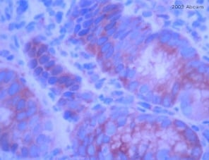 Immunohistochemistry (Formalin/PFA-fixed paraffin-embedded sections) - Anti-E Cadherin antibody (ab15148)