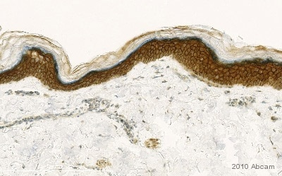 Immunohistochemistry (Formalin/PFA-fixed paraffin-embedded sections) - Anti-gamma Catenin antibody (ab15153)