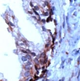 Immunohistochemistry (Formalin/PFA-fixed paraffin-embedded sections) - Anti-PSCA antibody, prediluted (ab15169)