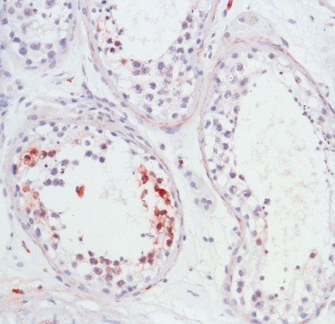 Immunohistochemistry (Formalin/PFA-fixed paraffin-embedded sections) - Anti-APAF1 antibody - C-terminal, prediluted (ab15178)
