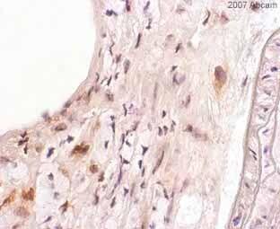 Immunohistochemistry (Frozen sections) - Anti-COX2 / Cyclooxygenase 2 antibody (ab15191)