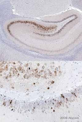 Immunohistochemistry (Formalin/PFA-fixed paraffin-embedded sections) - Anti-COX2 / Cyclooxygenase 2 antibody (ab15191)