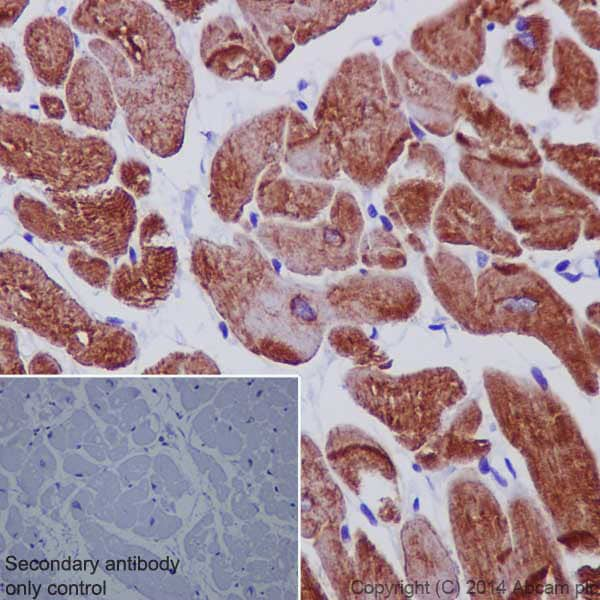 Immunohistochemistry (Formalin/PFA-fixed paraffin-embedded sections) - Anti-Desmin antibody - Cytoskeleton Marker (ab15200)