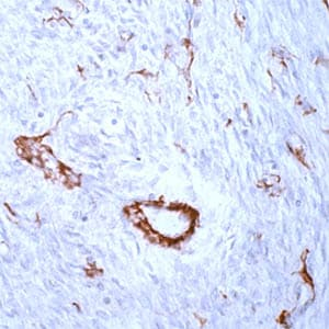 Immunohistochemistry (Formalin/PFA-fixed paraffin-embedded sections) - Anti-alpha smooth muscle Actin antibody, prediluted (ab15267)