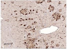 Immunohistochemistry (Formalin/PFA-fixed paraffin-embedded sections) - Anti-Amyloid Precursor Protein antibody (ab15272)