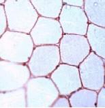 Immunohistochemistry (Formalin/PFA-fixed paraffin-embedded sections) - Anti-Dystrophin antibody (ab15277)