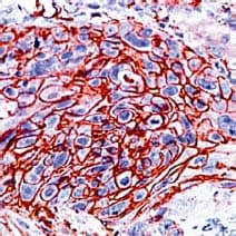 Immunohistochemistry (Formalin/PFA-fixed paraffin-embedded sections) - Anti-Glucose Transporter GLUT1 antibody (ab15309)