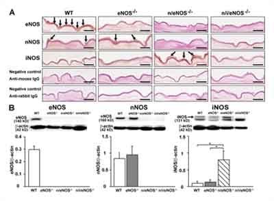 Immunohistochemistry (Frozen sections) - Anti-iNOS antibody (ab15323)