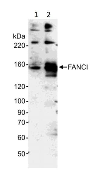 Western blot - Anti-FANCI antibody (ab15344)