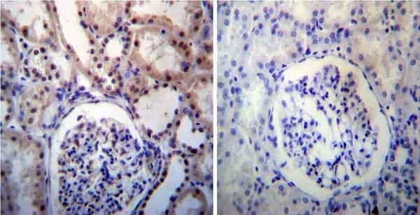 Immunohistochemistry (Formalin/PFA-fixed paraffin-embedded sections) - Anti-Nucleophosmin antibody (ab15440)