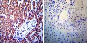 Immunohistochemistry (Formalin/PFA-fixed paraffin-embedded sections) - Anti-Presenilin 1/PS-1 antibody [APS 11] (ab15456)