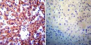Immunohistochemistry (Formalin/PFA-fixed paraffin-embedded sections) - Anti-Presenilin 1/PS-1 antibody [APS 18] (ab15458)