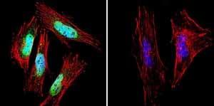 Immunocytochemistry/ Immunofluorescence - Anti-Presenilin 1/PS-1 antibody [APS 18] (ab15458)