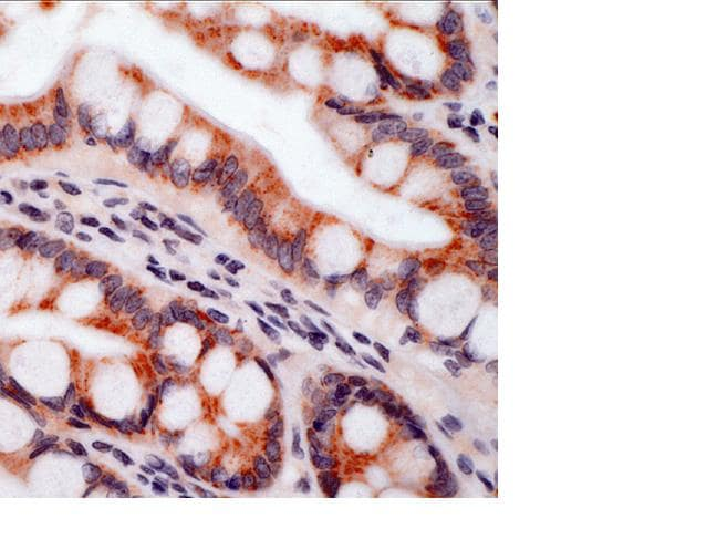 Immunohistochemistry (Formalin/PFA-fixed paraffin-embedded sections) - Anti-Integrin beta 5 antibody (ab15459)