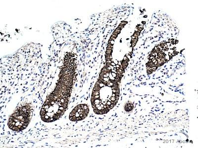 Immunohistochemistry (Formalin/PFA-fixed paraffin-embedded sections) - Anti-Cytokeratin 19 antibody (ab15463)