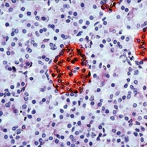 Immunohistochemistry (Formalin/PFA-fixed paraffin-embedded sections) - Anti-NSE antibody - C-terminal, prediluted (ab15488)