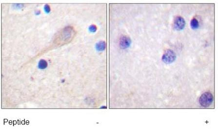 Immunohistochemistry (Formalin/PFA-fixed paraffin-embedded sections) - Anti-Parkin antibody (ab15494)