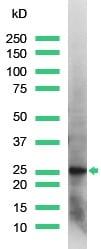Western blot - Anti-PGP9.5 antibody - Neuronal Marker (ab15503)