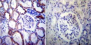 Immunohistochemistry (Formalin/PFA-fixed paraffin-embedded sections) - Anti-Presenilin 2/AD5 antibody [APS 21] (ab15548)