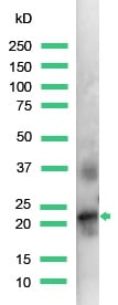 Western blot - Anti-Placental lactogen antibody, prediluted (ab15555)