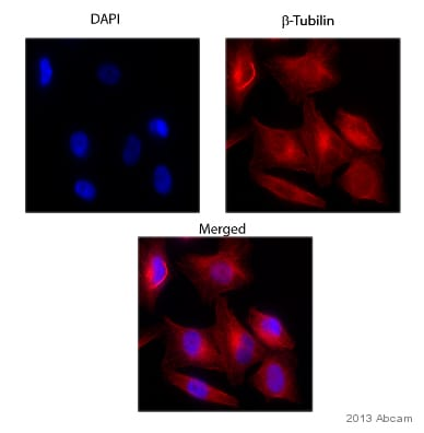 Immunocytochemistry/ Immunofluorescence - Anti-beta Tubulin antibody (ab15568)