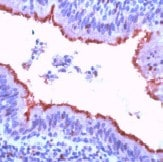 Immunohistochemistry (Formalin/PFA-fixed paraffin-embedded sections) - Anti-beta Tubulin antibody, prediluted (ab15569)