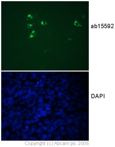 Immunocytochemistry/ Immunofluorescence - Anti-Fragilis antibody (ab15592)