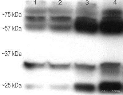 Western blot - Anti-BMP6 antibody [morph-6.1] (ab15640)
