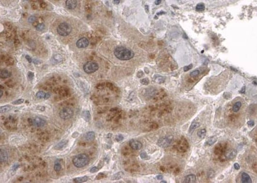 Immunohistochemistry (Formalin/PFA-fixed paraffin-embedded sections) - Anti-CLPP antibody (ab15708)