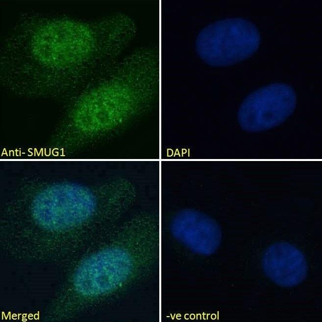 Immunocytochemistry - Anti-SMUG1 antibody (ab15716)
