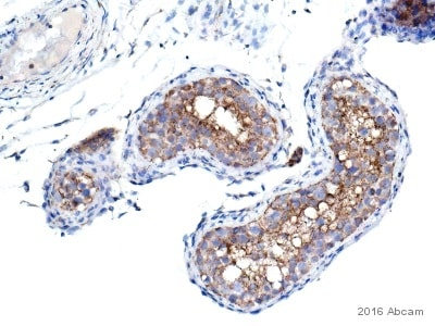 Immunohistochemistry (Formalin/PFA-fixed paraffin-embedded sections) - Anti-VDAC1 / Porin antibody - Mitochondrial Loading Control (ab15895)