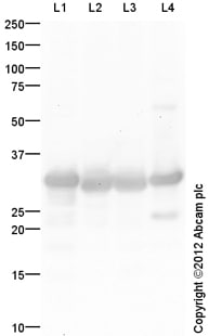 Western blot - Anti-Carbonic Anhydrase 3/CA3 antibody (ab150037)