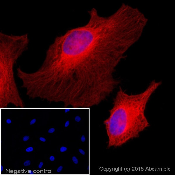 Immunocytochemistry/ Immunofluorescence - Donkey Anti-Rabbit IgG H&L (Alexa Fluor® 647) (ab150075)