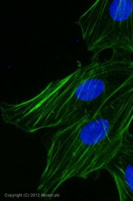 Immunocytochemistry/ Immunofluorescence - Goat Anti-Rabbit IgG H&L (Alexa Fluor® 488) preadsorbed (ab150085)