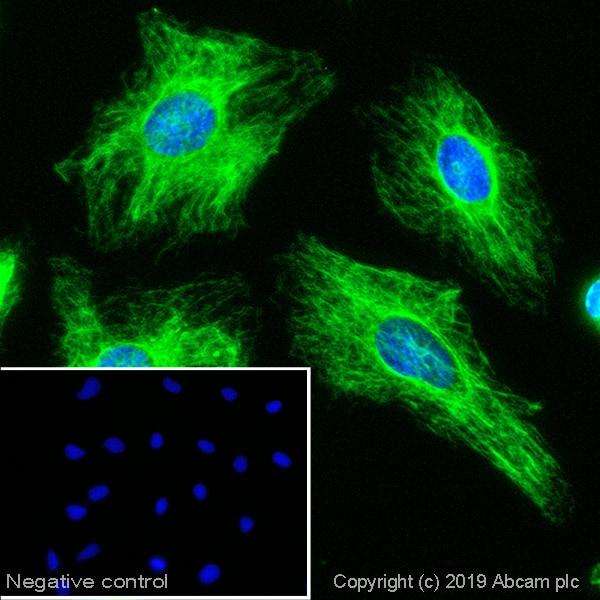Immunocytochemistry/ Immunofluorescence - Goat Anti-Mouse IgM mu chain (Alexa Fluor® 488) (ab150121)