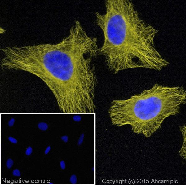 Immunocytochemistry/ Immunofluorescence - Donkey Anti-Goat IgG H&L (Alexa Fluor® 555) (ab150130)