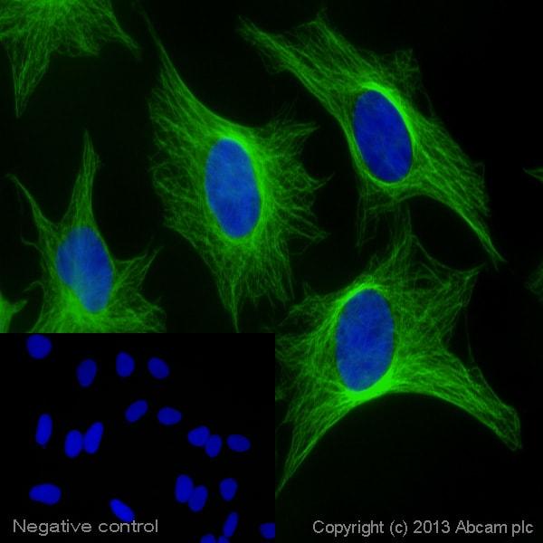 Alexa Fluor 488 Donkey Anti Goat Igg Secondary Antibody Preadsorbed Ab150133