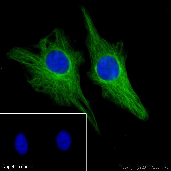 Immunocytochemistry/ Immunofluorescence - Donkey Anti-Rat IgG H&L (Alexa Fluor® 488) preadsorbed (ab150153)