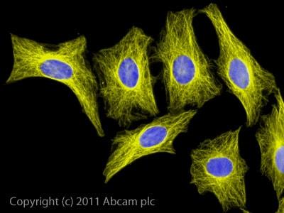 Immunocytochemistry/ Immunofluorescence - Goat Anti-Rat IgG H&L (Alexa Fluor® 555) (ab150158)
