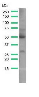Western blot - Anti-Glucose Transporter GLUT1 antibody [SP168] (ab150299)