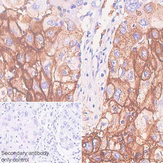 Immunohistochemistry (Formalin/PFA-fixed paraffin-embedded sections) - Anti-Glucose Transporter GLUT1 antibody [SP168] (ab150299)
