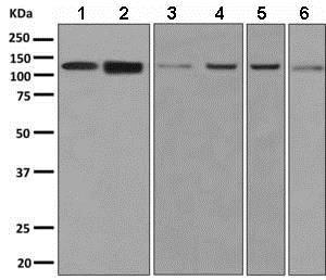 Western blot - Anti-Chromogranin B antibody [EPR9568] (ab150354)