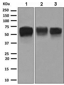 Western blot - Anti-MICA antibody [EPR6568] (ab150355)