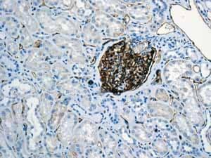 Immunohistochemistry (Formalin/PFA-fixed paraffin-embedded sections) - Anti-PODXL antibody [EPR9518] (ab150358)