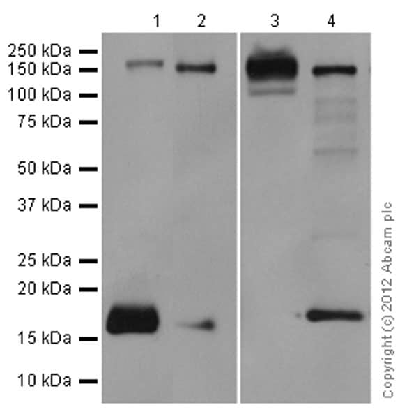 Western blot - Anti-Integrin alpha 5 antibody [EPR7854] (ab150361)