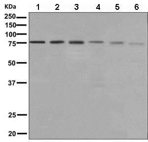Western blot - Anti-XPD antibody [EPR9674] (ab150362)